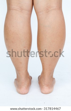 Asian fat women's feet on gray background.