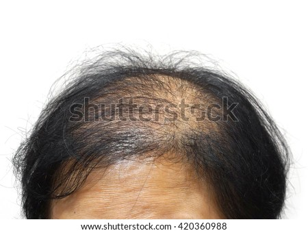 Asian female head with hair loss - stock photo