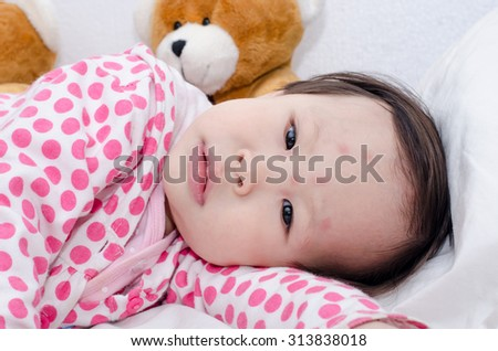 Asian girl's face with red spots due to insect bite - stock photo