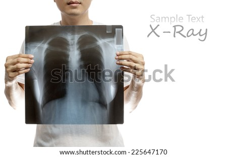 asian man holding X-ray film, breast, vertebra scan. isolated on white for health concept background