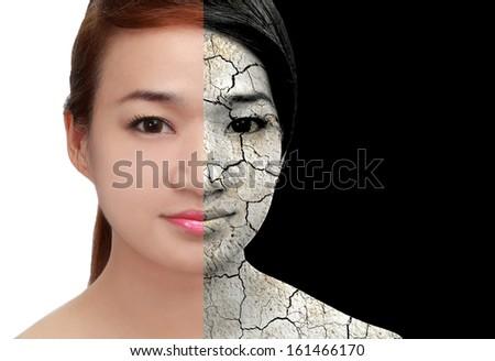 Skin And Damaged,dry Skin