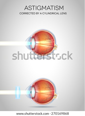 Astigmatism and Astigmatism corrected by a cylindrical lens. Eye vision disorder - stock photo