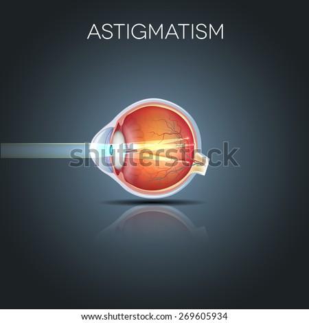 Astigmatism. Eyesight problem, blurred vision. Anatomy of the eye, cross section.  - stock photo