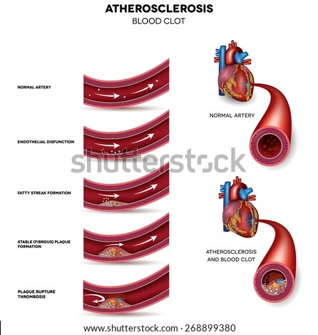 Atherosclerosis. Detailed illustration of Atherosclerosis stages, normal heart and damaged heart muscle as a result of the blood clot. - stock photo