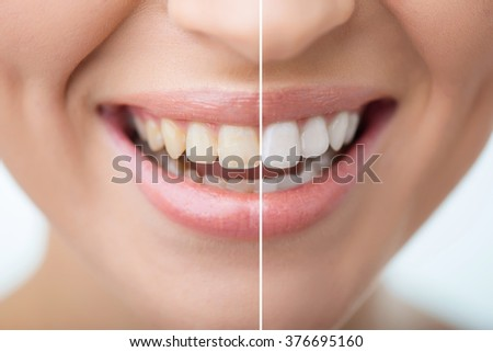 Attractive woman smiling  - stock photo