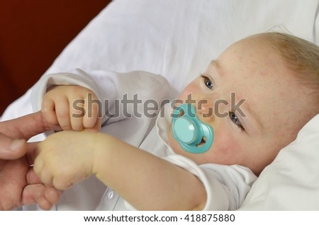 """Baby boy suffering from sixth disease (three-day-fever or Roseola). Its manifestations are limited to a transient rash (""""exanthem"""") following a fever. It is a disease of children under two years old. - stock photo"""