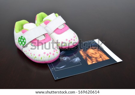 Baby shoe with ultrasound images - stock photo