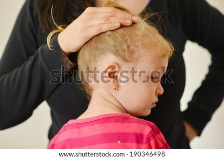 Baby with chicken pox rash - stock photo