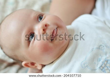 baby with red cheek  - diathesis - stock photo