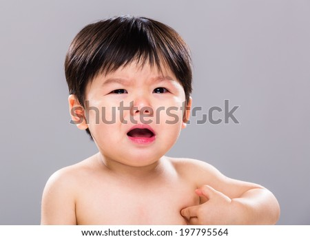 Baby with skin problem - stock photo