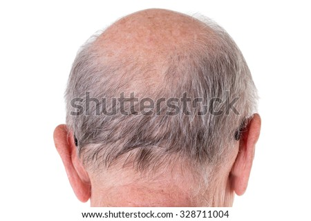 Back of the bald head of old man. Back view. Isolated on a white background. - stock photo