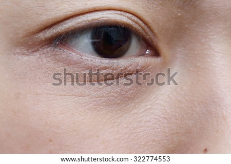 background of asian woman eye with wrinkle under eye bag