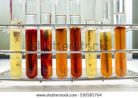 bacterial culture