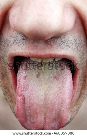 Bacterial infection disease tongue in a young man