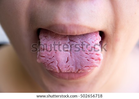 Mother, 28, had her tongue rebuilt with flesh from her ARM ... |Tongue Wounds