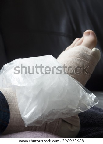 Bag of Ice on a Broken, Fractured or Sprained Foot or Ankle in Cast - stock photo