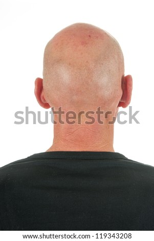 Bald man at backside
