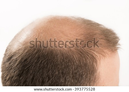 Baldness Alopecia man hair loss haircare  - stock photo