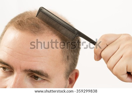 Baldness Alopecia man hair loss medicine bald treatment transplantation - stock photo