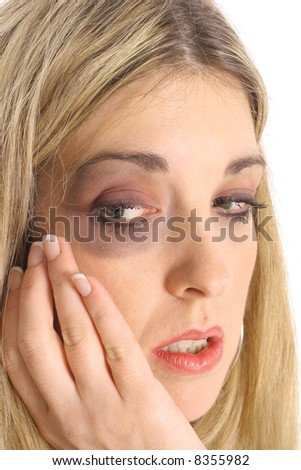 battered woman with a black eye - stock photo