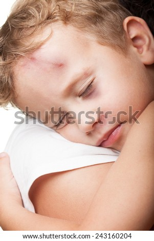 Beaten boy with shiner hugged by mother - stock photo