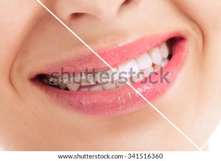 Beautiful healthy smile before and after braces close up