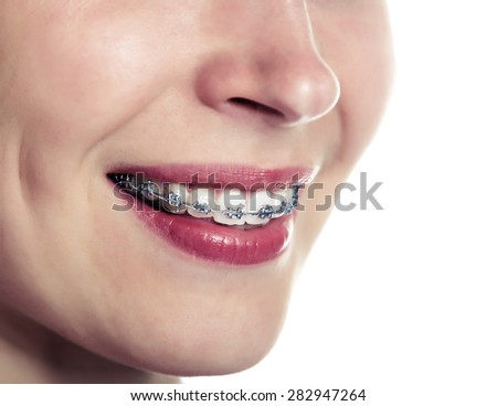 Beautiful smiling girl with retainer for teeth. - stock photo