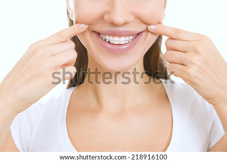 Beautiful smiling girl with retainer for teeth pointing at her smile, stomatology - stock photo