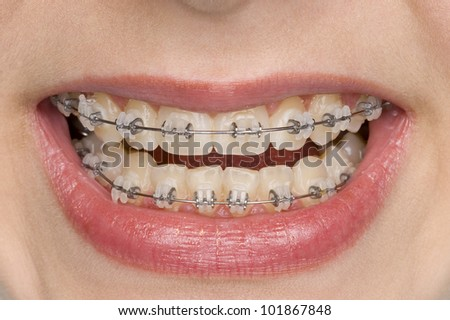 beautiful teeth with perfect oral hygiene
