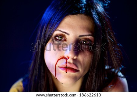 Beautiful woman after being hit strong bruises in face from husband - stock photo