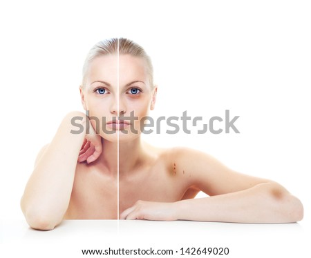 Beautiful woman's portrait isolated on white, before and after abuse, half with bruises on her body. - stock photo