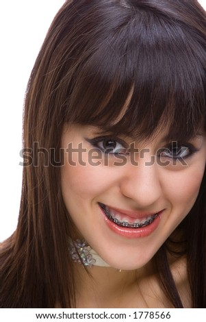 Beautiful young brunette with brackets on teeth in white