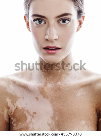 beautiful young brunette woman with vitiligo disease close up isolated on white