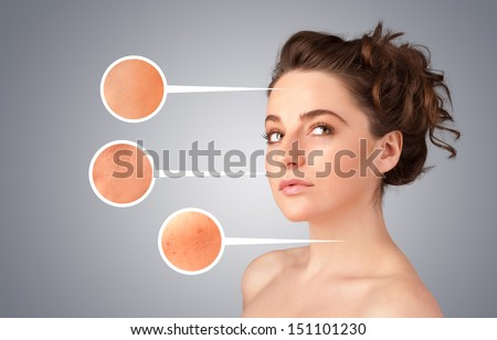 Beautiful young girl with facial care arrow signs of damaged skin on gradient background - stock photo