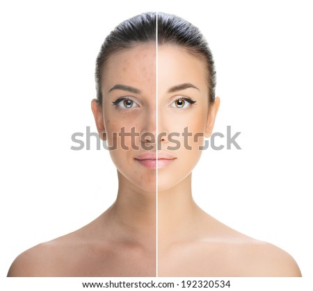 beautiful young woman on a white background, beauty concept.retouch before and after.face divided in two parts, poor condition the skin in good condition - stock photo