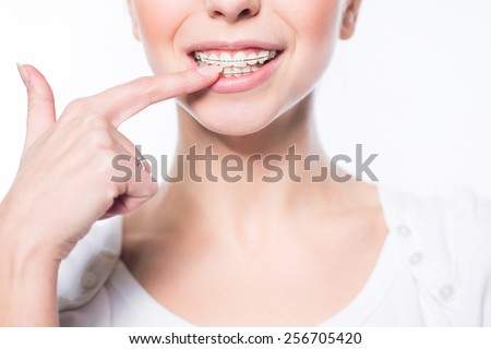 Beautiful young woman showing her teeth braces - stock photo