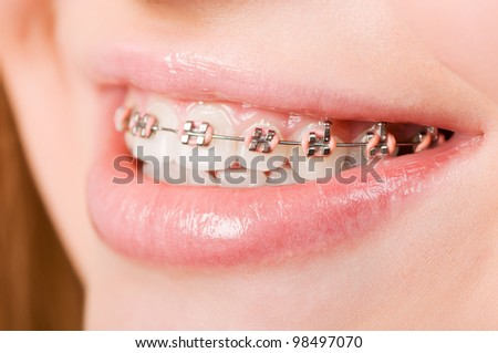 Beautiful young woman with brackets on teeth close up - stock photo