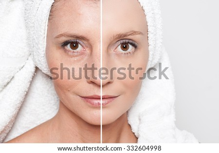 Beauty concept - skin care, anti-aging procedures, rejuvenation, lifting, tightening of facial skin - stock photo
