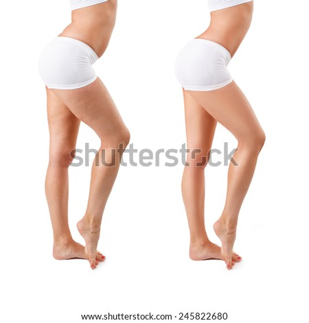 Before and after. Cellulite treatment program for women, weight loss. Figure of a young girl before and after, isolated, over white background with copy space. Concept of cellulite, spa treatment.  - stock photo