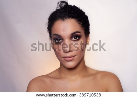 Before and after cosmetic operation. Young pretty woman mulatto, dark skinned portrait, studio picture, bright background. Before and after plastic procedure, anti-age therapy, looking into  lens  - stock photo
