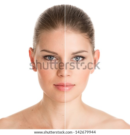 Before and after cosmetic operation. Young pretty woman portrait, isolated on a white background. - stock photo