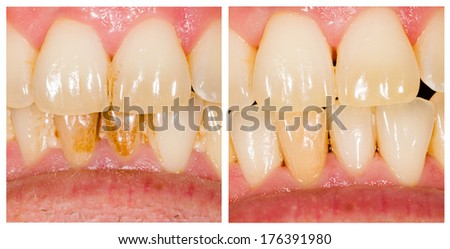 Before and after dental plaque removal treatment. - stock photo