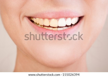 Before and after teeth whitening. Teeth divided in two sides, on left - yellow teeth before whitening, on right - white teeth after whitening. - stock photo