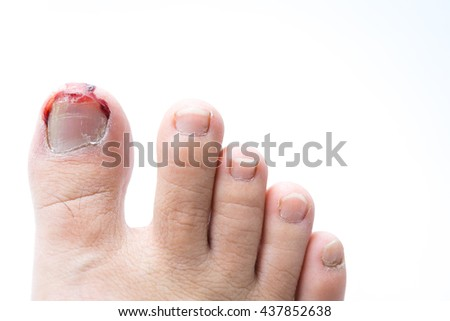 Cracked fungus toe nail. Closeup of a hairy human foot and ...
