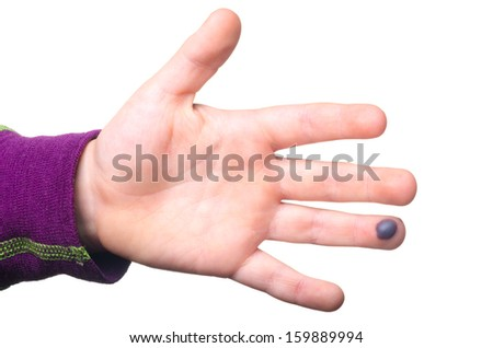 Blood blister on a child's finger isolated on white background - stock photo