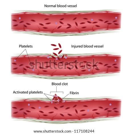 Blood clotting process - stock photo