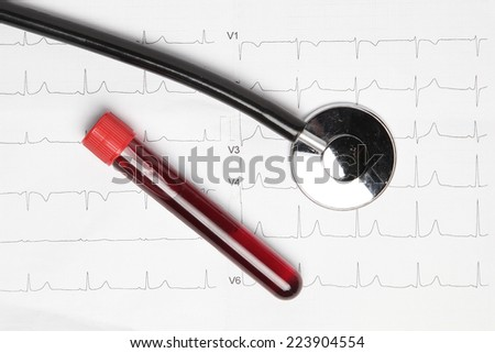 Blood Sample - stock photo
