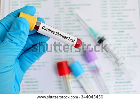 Blood sample for cardiac marker test - stock photo
