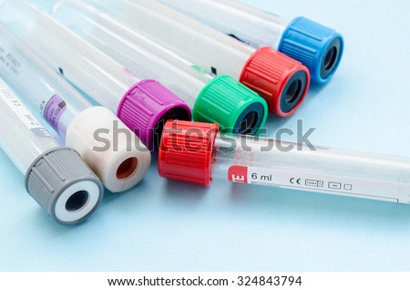Blood sample test and empty tube blood for blood test screening with blank label for your text in laboratory. - stock photo