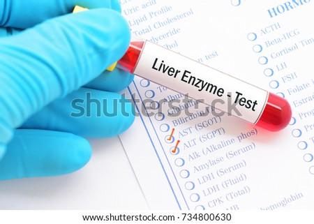 Blood Sample Requisition Form Liver Enzyme Photo 734800630 – Sample Requisition Form